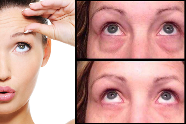 Efeito Botox Instantâneo – Não precisa de Agulhas!