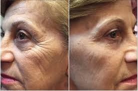 Efeito Botox Instantâneo efeito cinderella ageless
